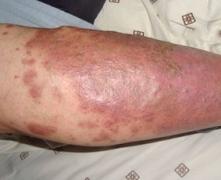 治关节型银屑病如何治疗